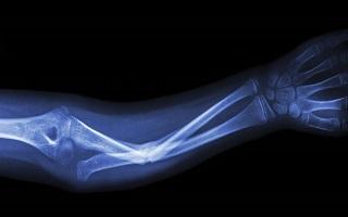 Австралийцы разработали инновационные импланты