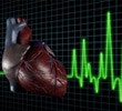 New Russian solution to drive arrhythmia out of Earth?